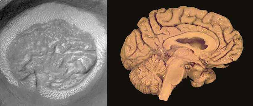 Actual Human Brain Labelled
